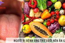 Người bị bệnh ung thư lưỡi nên ăn gì và kiêng ăn gì?
